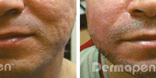 before-after-acne-scarring2