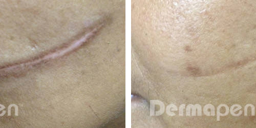 before-after-cut-scar