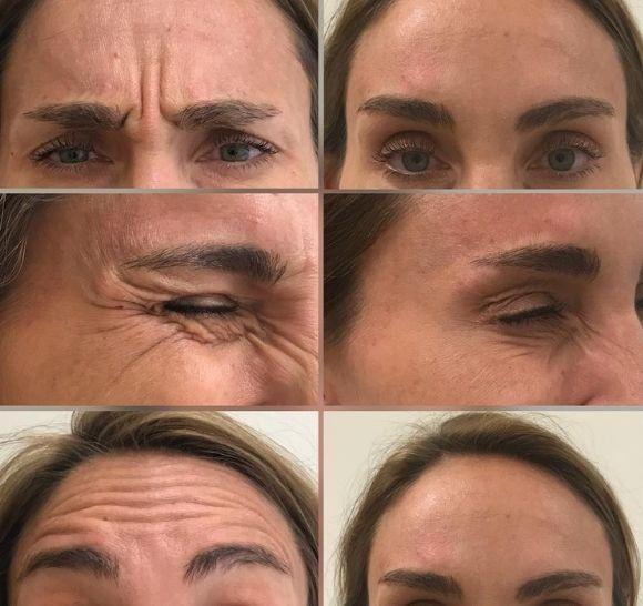 Botuliini/ botox - ennen ja jälkeen - naisen kasvot.