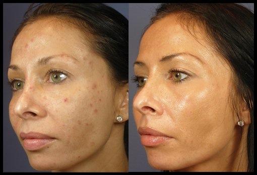kemiallinen kuorinta - ennen ja jälkeen - naisen kasvot.