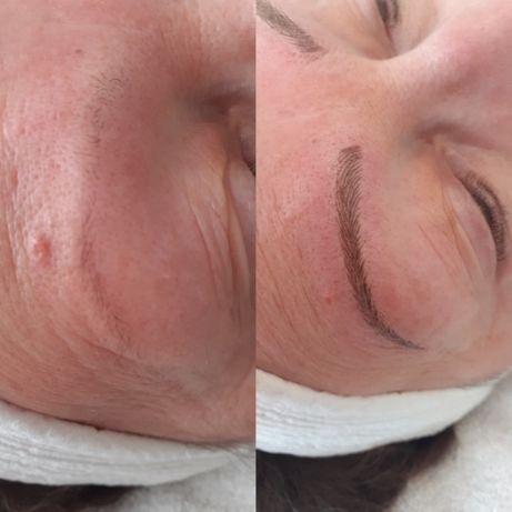 Microblading -kulmat - ennen ja jälkeen - naisen kasvot.