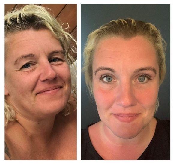 asiakaspalaute - ylaluomileikkaus - ennen ja jälkeen - naisen kasvot.