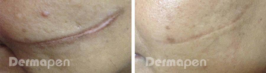 Dermapen-mikroneulaus - ennen ja jälkeen kuva kasvojen arvesta.
