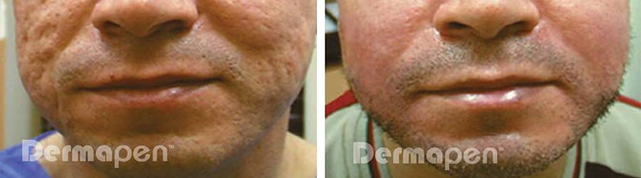 Dermapen-mikroneulaus - ennen ja jälkeen aknearvet kasvoilla.