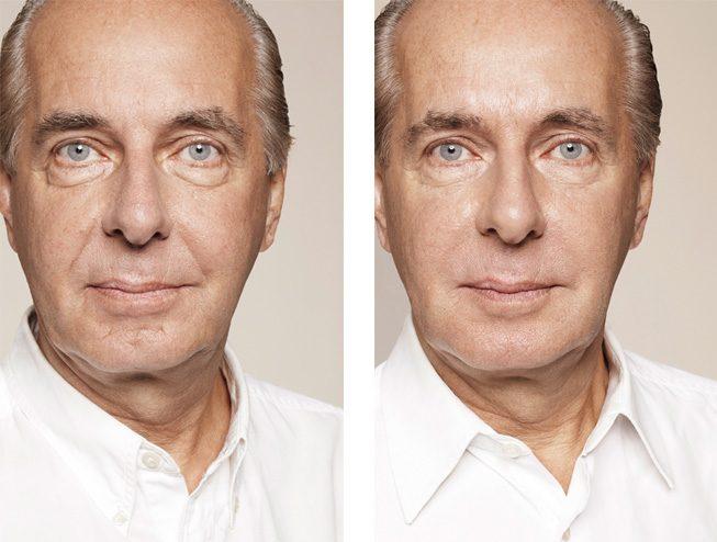 Skinbooster -hoito - ennen ja jälkeen - miehen kasvot