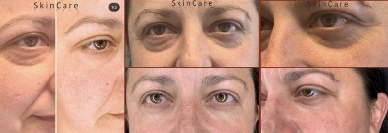 Sunekos-silmänympäryshoito - ennen ja jälkeen - naisen kasvot.